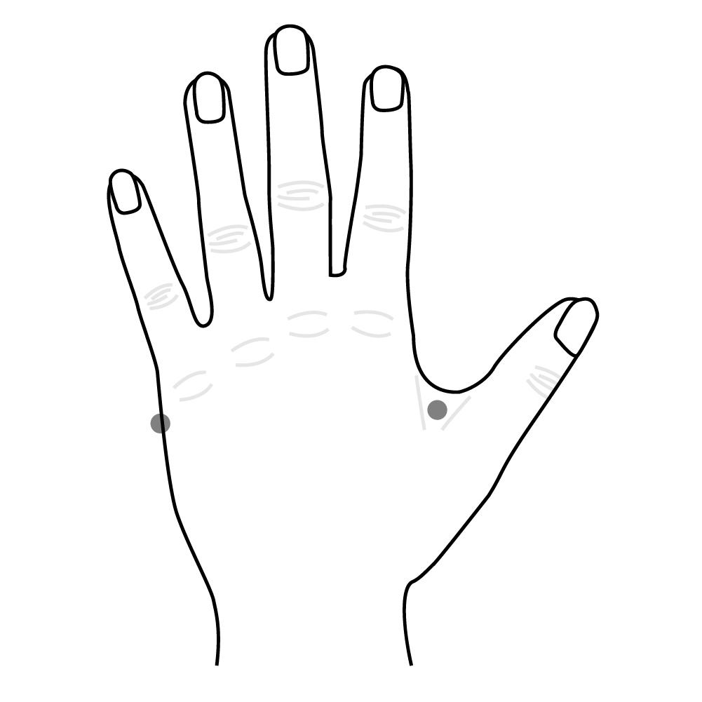 Acupuncture illustration